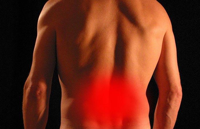 Rücken--und-Beinschmerzen